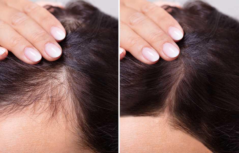 🏆 Classifica migliori integratori per capelli 2021 (+efficaci) le novità 16