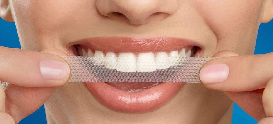 strisce sbiancanti denti 3
